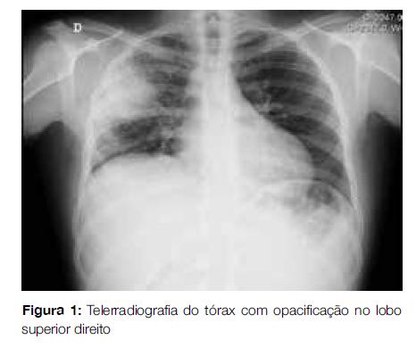 cancer pulmonar agente causal