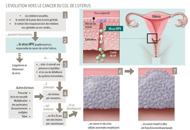 vaccin de cancer de col uterin papillary lesion removal