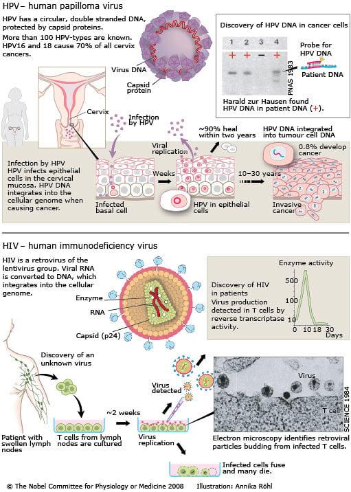 detoxifierea colonului natural cancer cerebral tipo 2