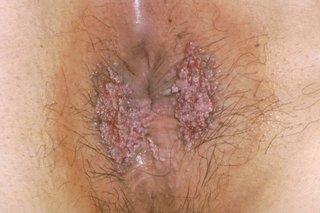 papilloma removal nhs condyloma acuminatum plural form