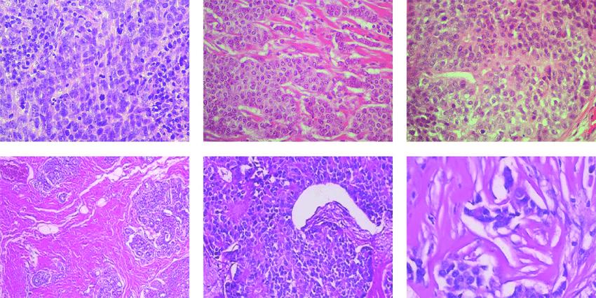 benign cancer detection