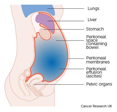 breast cancer abdominal fluid