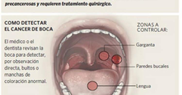 cancer de orofaringe e hpv