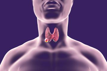 tipuri cancer tiroida