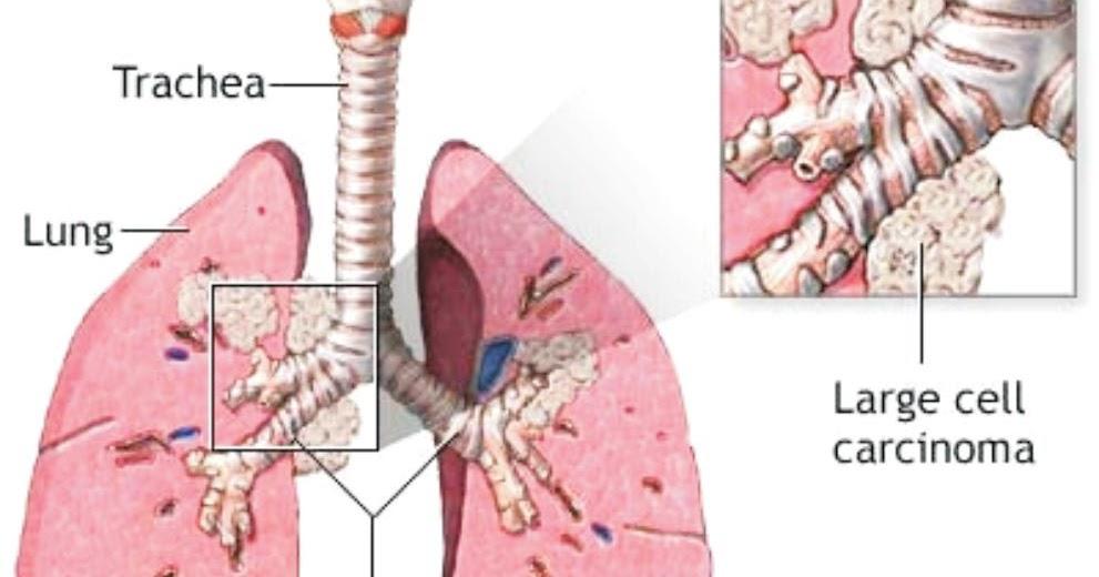 ovarian cancer peritoneal fluid ciuperci la congelator