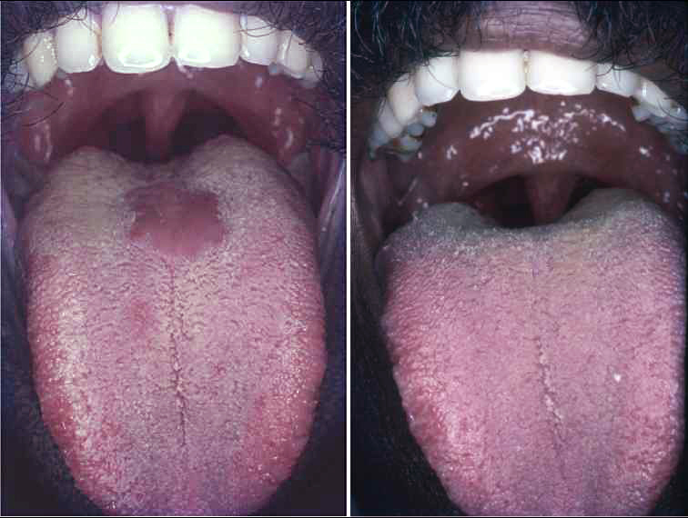 papillary lesion under tongue hpv warts not a big deal