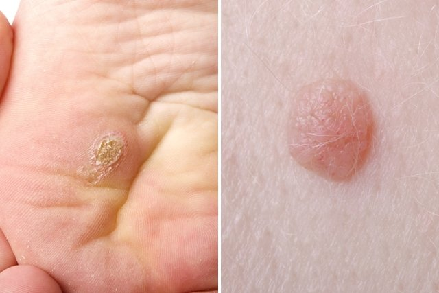 virus del papiloma humano sintomas como se contagia warts on hands you tube