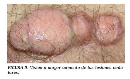 cancer de uretra tratamiento hpv virus and diabetes