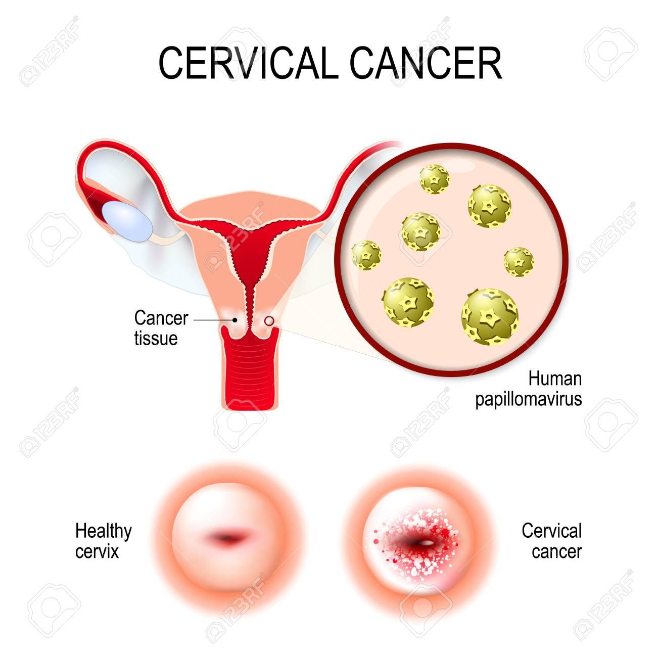 cancerul mamar san simptome