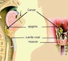 precancerous cells in cervix hpv cancer cerebral sintomas finais