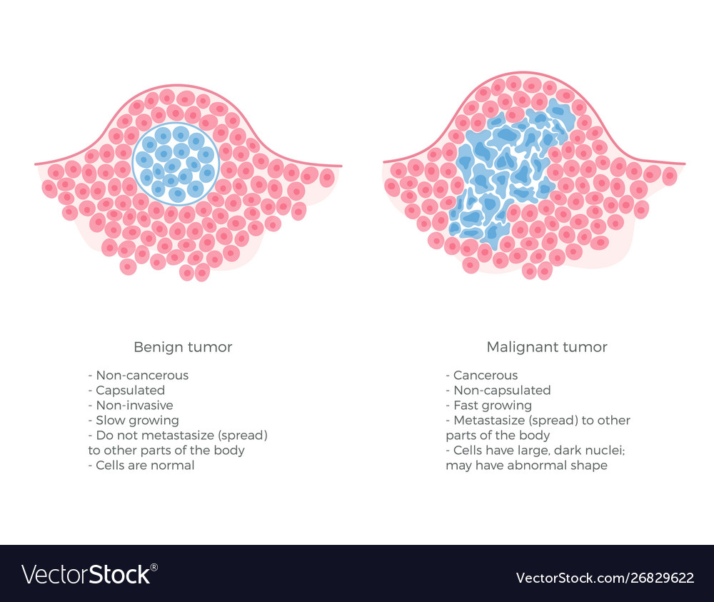 papilloma vescicale cure