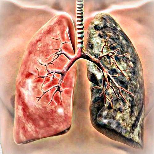 virus del papiloma humano se cura oxiuros tratamiento de eleccion