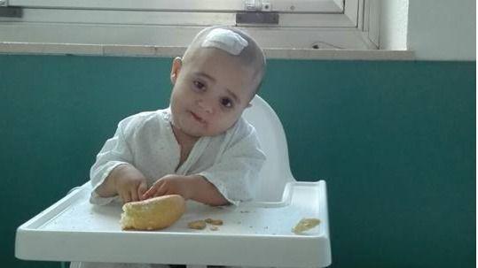 cancer cerebral pediatrico