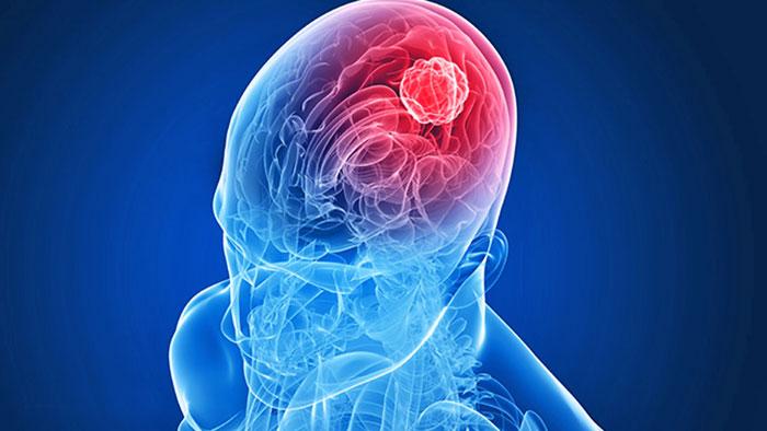 human papillomavirus in face renal cancer biomarkers