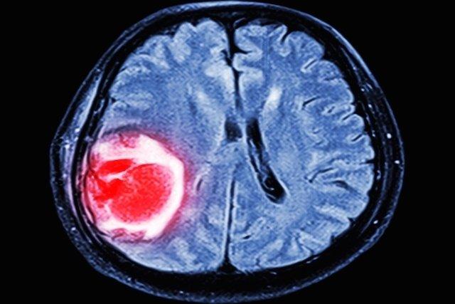 cancer biliar metastasis