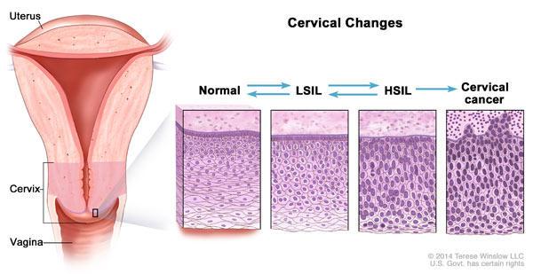 cancer cervical cells virus papiloma humano en mujeres como se contagia