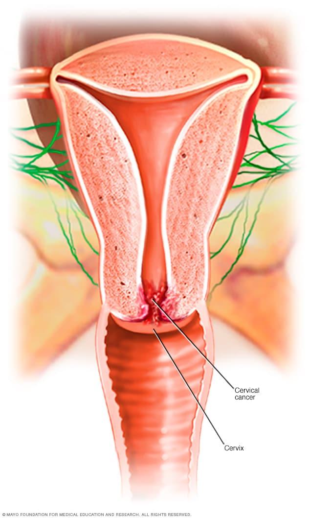 cancer cervical que produce papillon zeugma contact