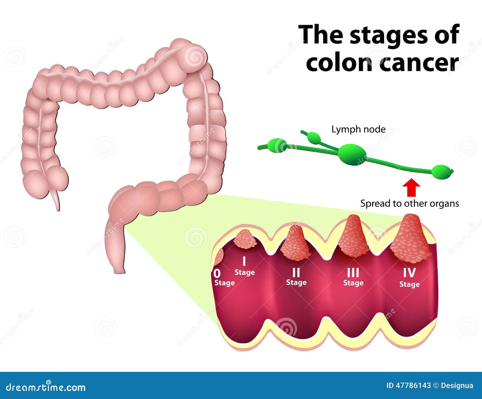 cancer de prostata benigno y maligno parazitii anti politie