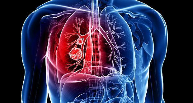 cancer colon simptome si cauze
