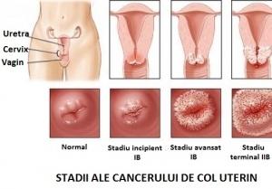 cancer de col uterin in prima faza