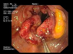 virus papiloma humano tratamiento casero uterine cancer hysteroscopy