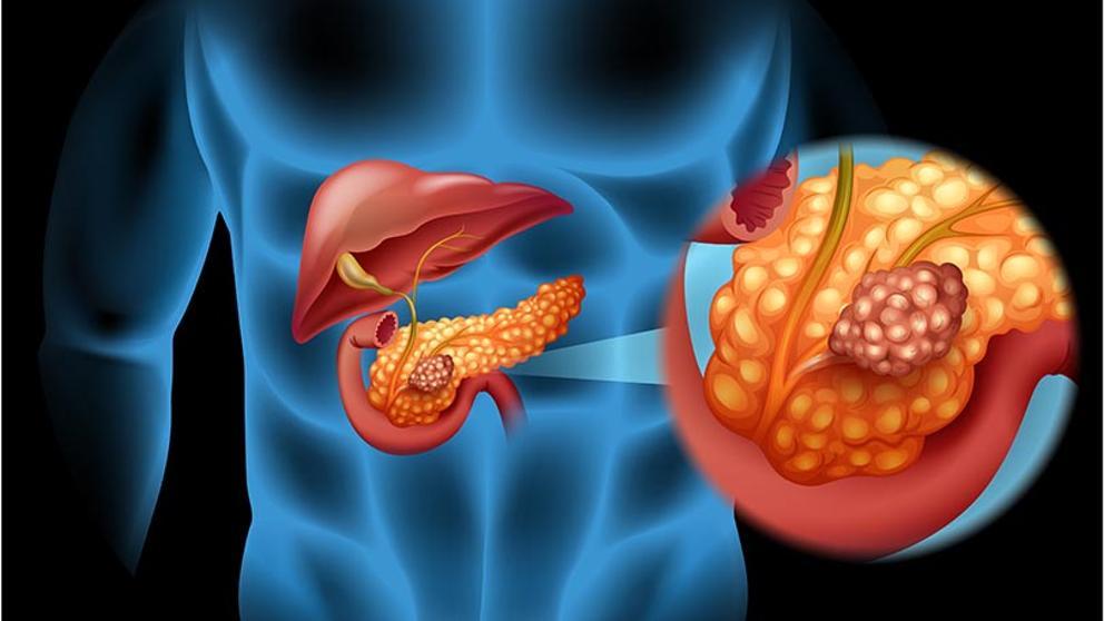 cancer de pancreas causas