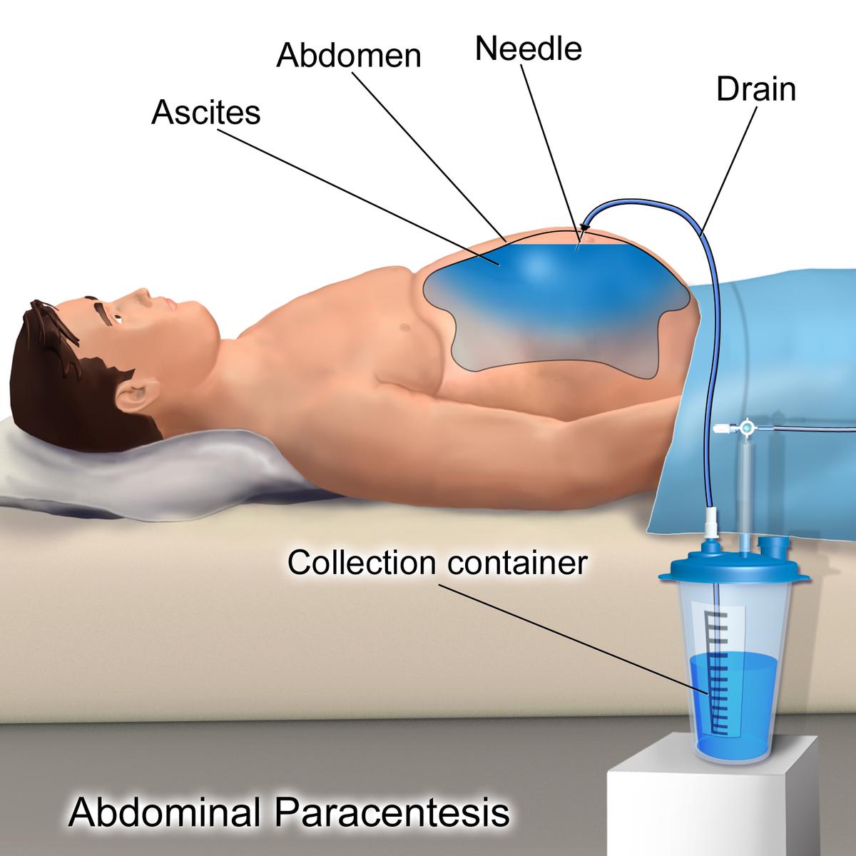papilloma and squamous cancer de colon recidiva