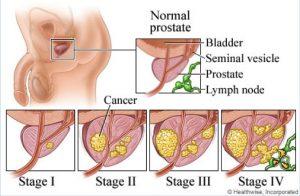 cancer de prostata etapas human papilloma meaning