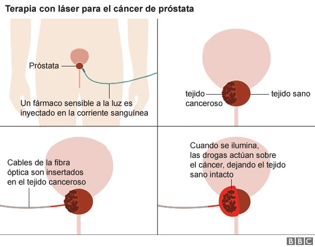 cancer de prostata impotencia