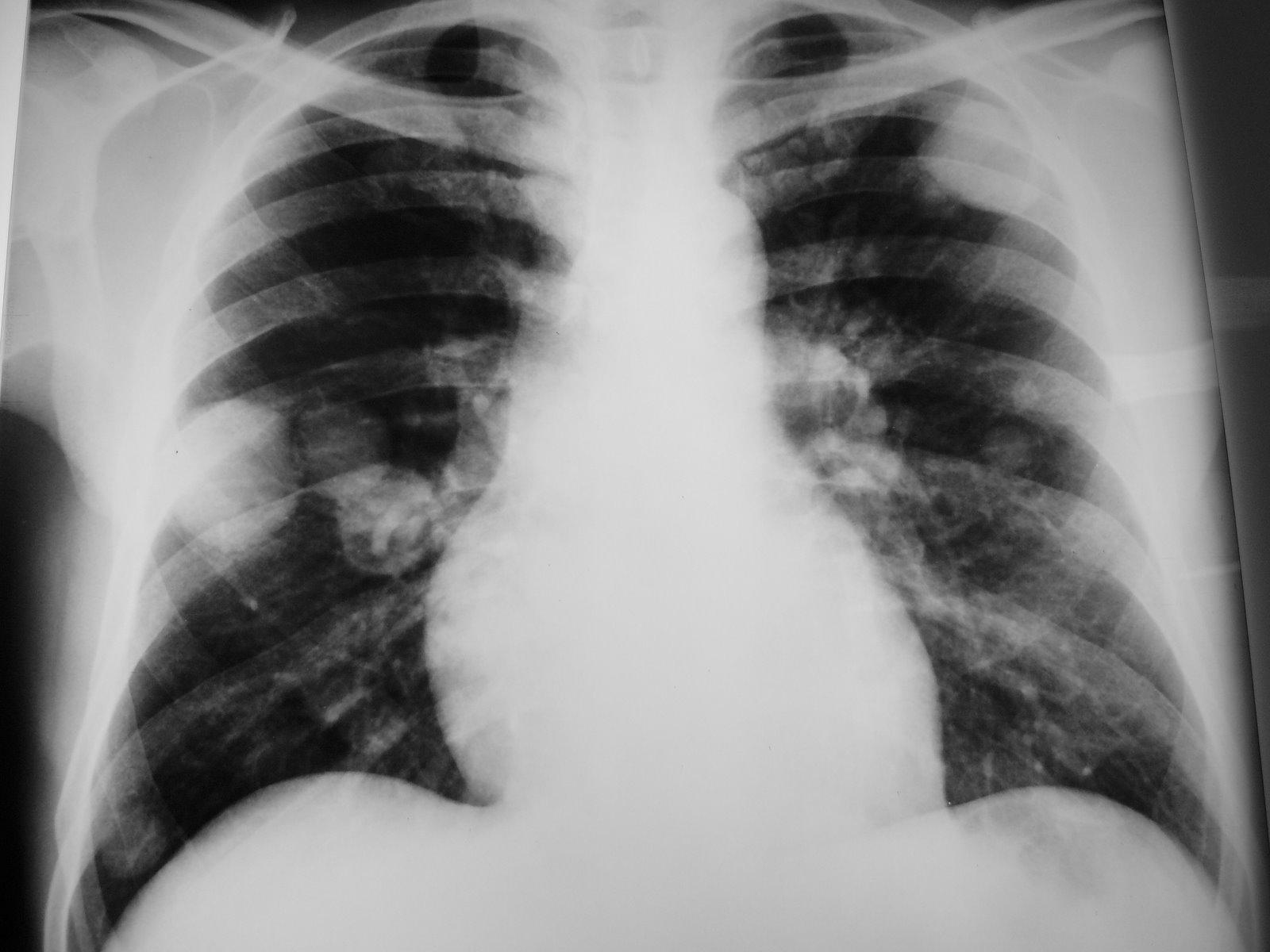 cancer de prostata metastasis pulmonar