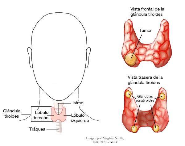 cancer de tiroide imagenes cancer professional societies
