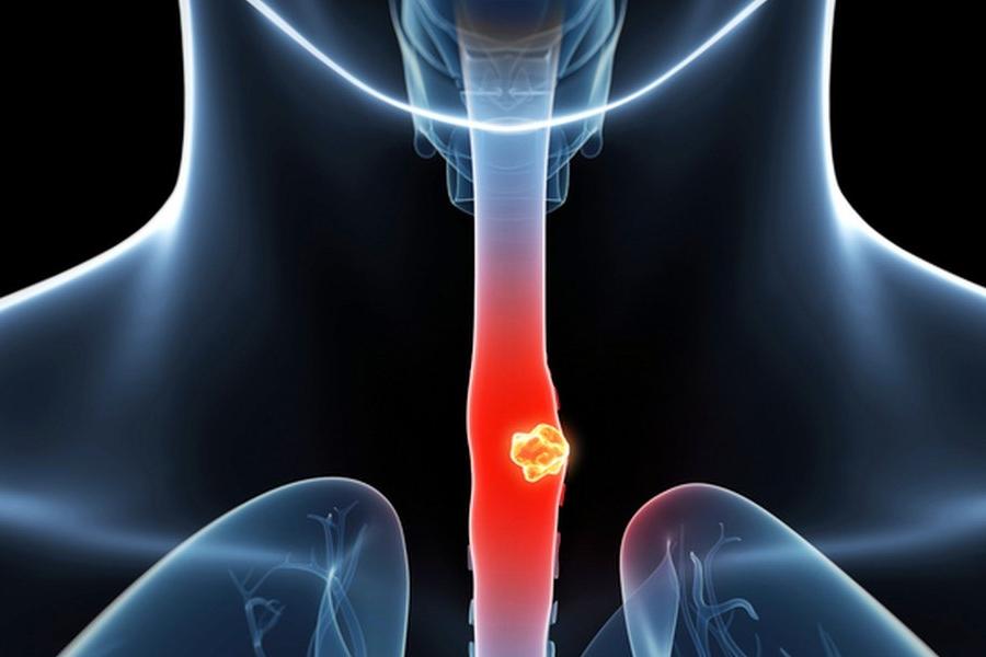 cancer esofagian prognostic papilloma tumore seno