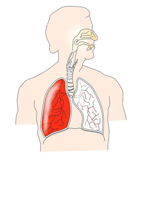 endobronchial papillomatosis togliere papilloma gola