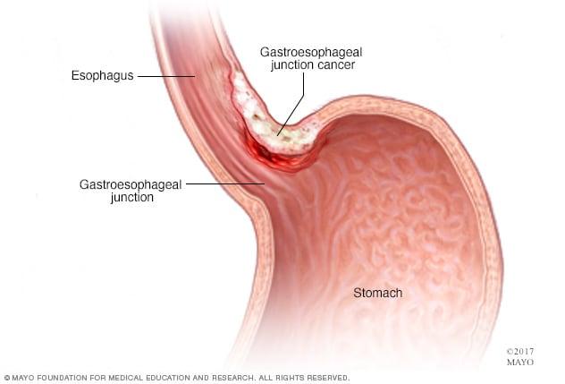 cancer gastric smoking hpv papilloma uomo