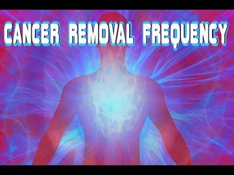 papiloma virus pozitiv cancer immuno hormonal