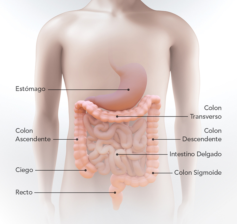 cancer intestinal que es
