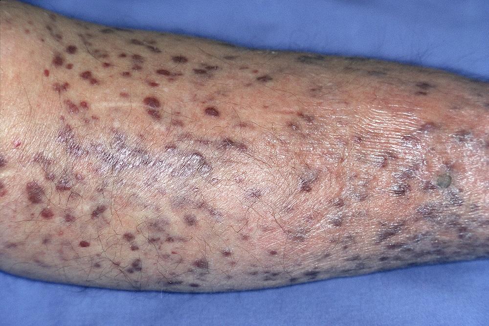 virus de papiloma humano y el vih