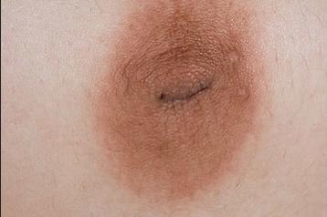 cancer mamelon paget helminth definition plural