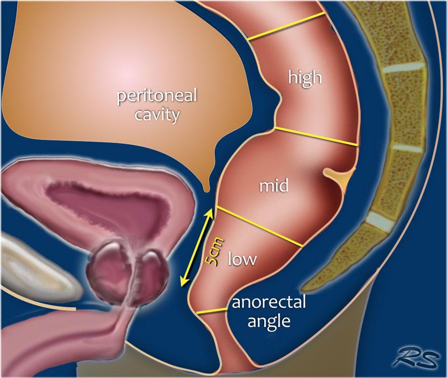 papillomatosis dermatosis cancerul mamar si ovarian