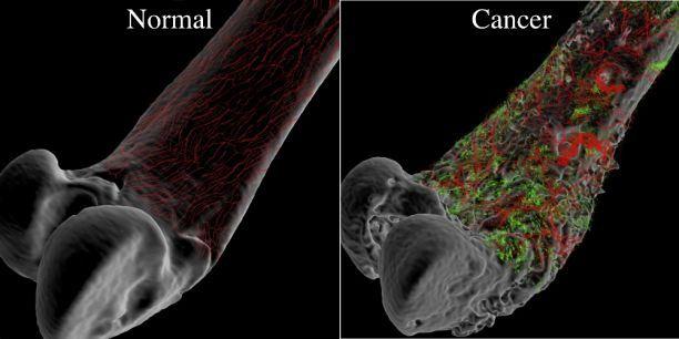 cancer osos simptomatologie cancer laringe vph