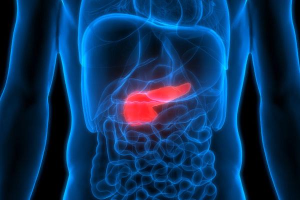 cancer pancreas metastaze
