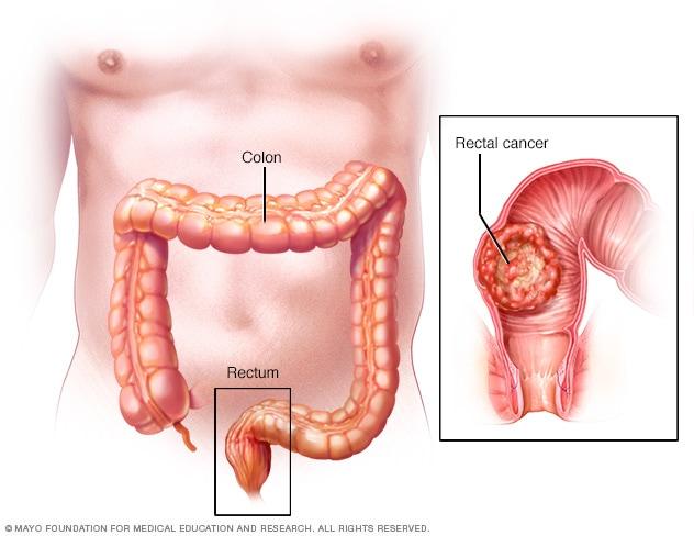 cancer rectal symptoms