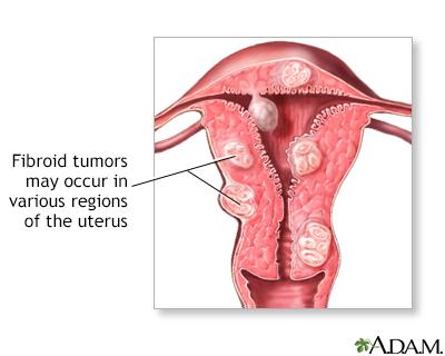 picor en el ano oxiuros cancer pancreas metastase osseuse