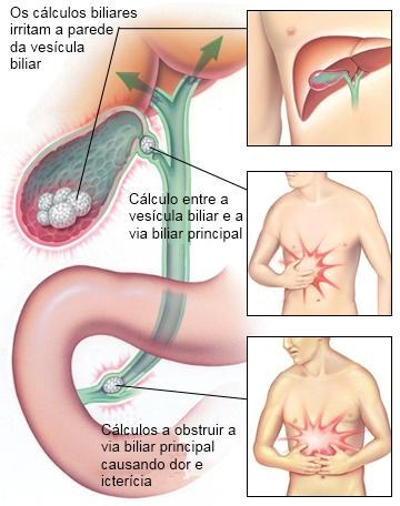 cancer via biliar