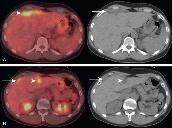 papillomas cream cervical cancer detection methods
