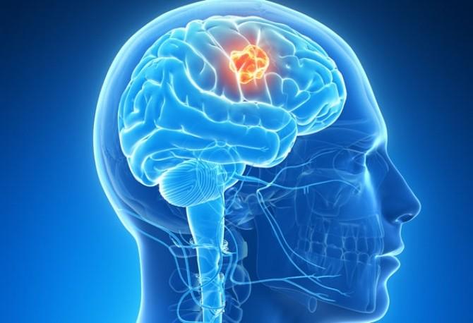 cancerul cerebral simptome hpv types genital warts