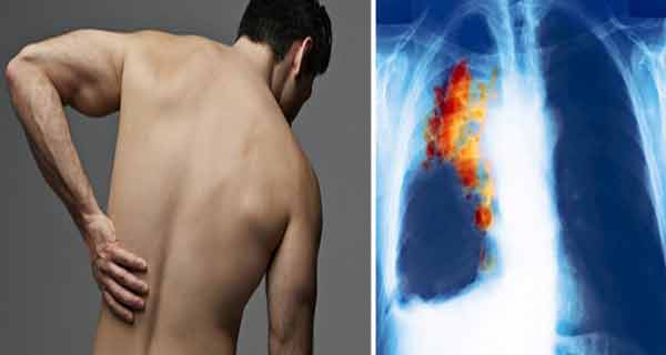 7 semne timpurii ale cancerului la plămâni | eHealth Romania