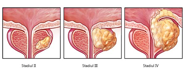 cancerul de prostata se trateaza retete smoothie verde detoxifiant