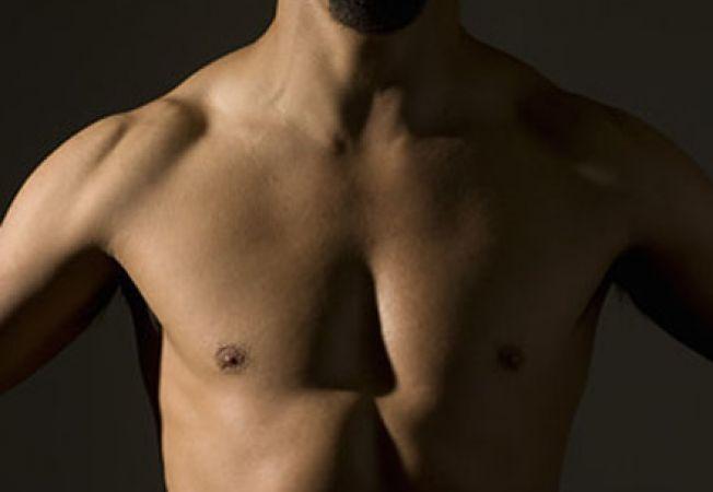 Cancerul mamar la barbat