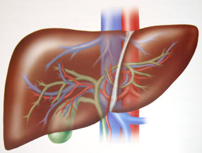 cancerul hepatic tratament rectal cancer or piles